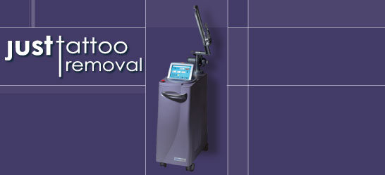Just tattoo removal for How long does it take to get a tattoo removed